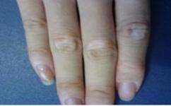 治疗白癜风早期的症状有哪些